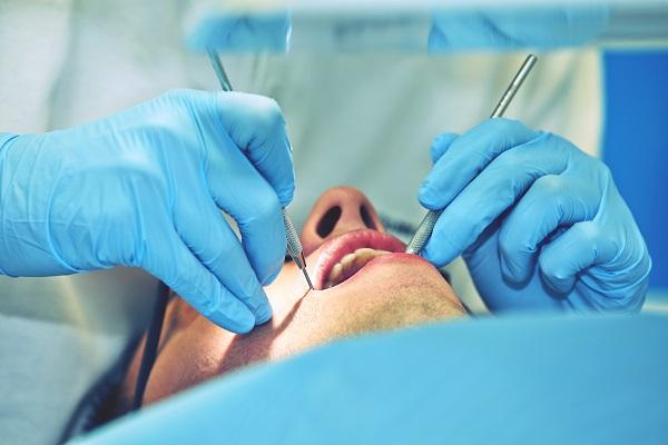 Entenda mais sobre periodontite